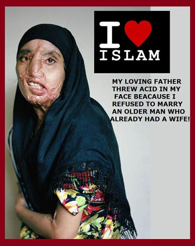 islam-religione-di-pace-papa-gettato-acido-su-faccia